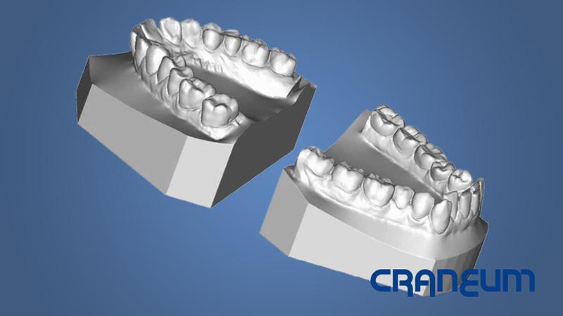 https://craneum.com.br/wp/wp-content/uploads/2013/07/modelos-3d-abertos.jpg